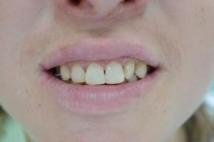 Реставрация зуба фотополимером Filtek