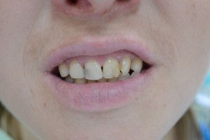 До реставрации зуба материалом Filtek