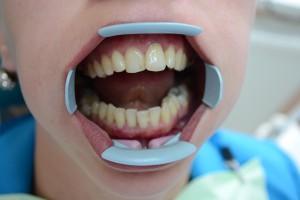 До реставрации зуба материалом Мегафил (Германия)