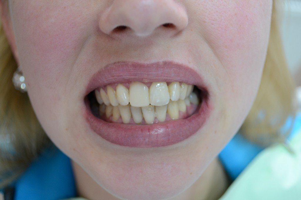 Восстановление зуба фотополимером