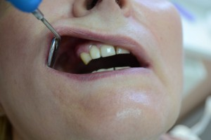 До протезирования. У пациента двухсторонние концевые дефекты зубов