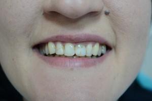 До реставрации передних зубов фотополимером Esthet X HD