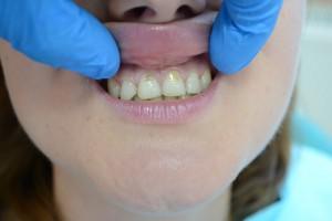 До реставрации зубов материалом Gradia GC