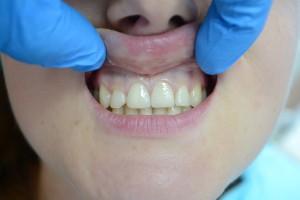 Передние 21 и 11 зубы отреставрированы фотополимером Gradia GC