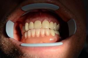 После протезирования зубов
