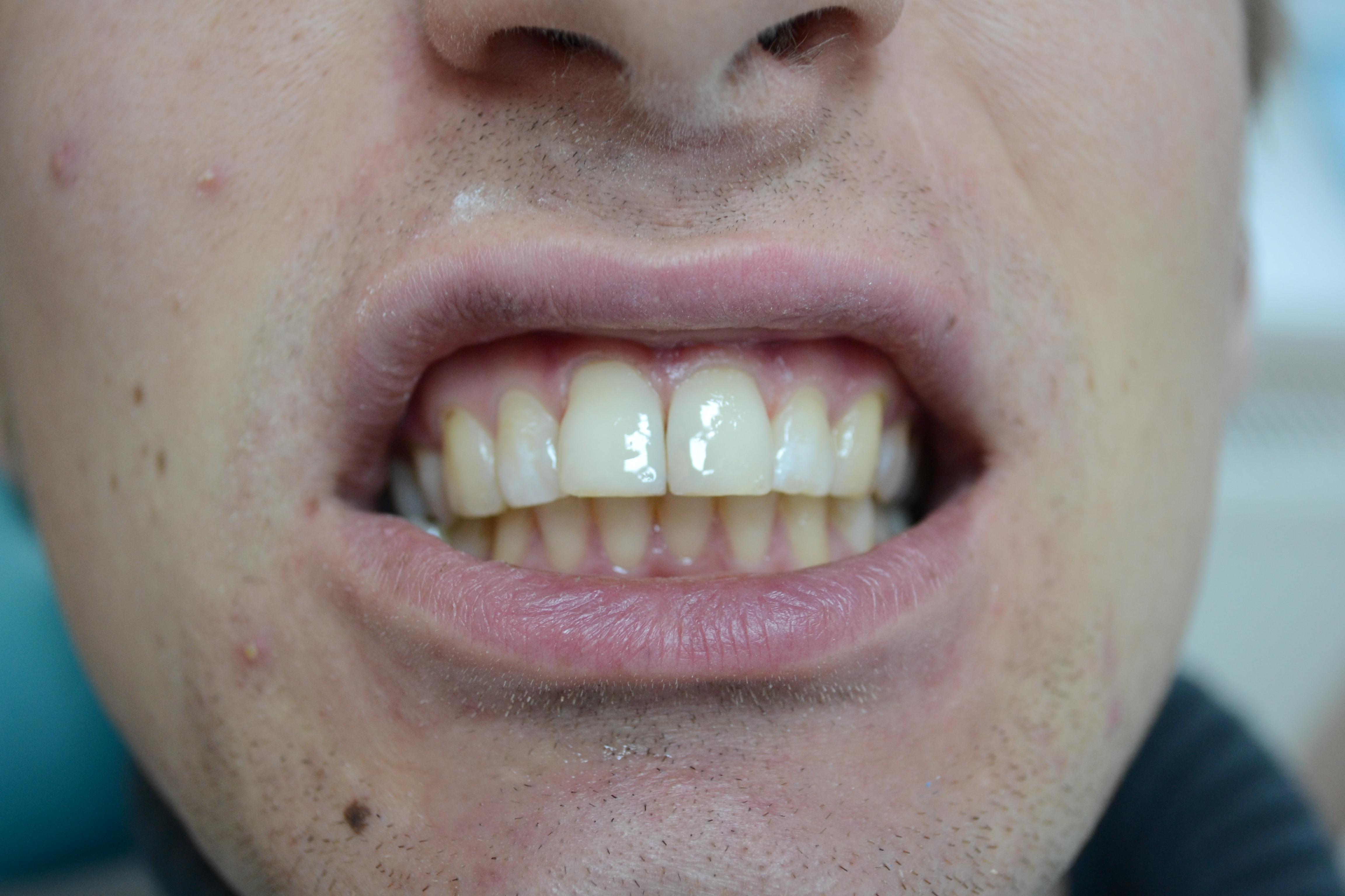 виниры между зубами