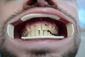 Кариозные поражения передних зубов