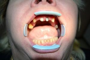 До протезирования зубов металлокерамикой