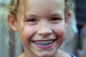 Исправление аномального прикуса у детей