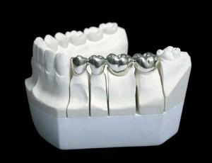 Металлические зубные коронки Сумы