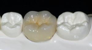 Металлокерамические зубы в Сумах. Часто задаваемые вопросы