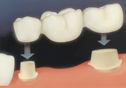 Мостовидные протезы (зубной мост)
