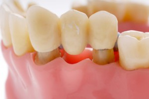 зубной мост Сумы