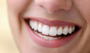 Показания к отбеливанию зубов