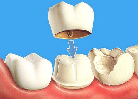 снятие зубной боли после лечения