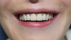 Установка металлокерамики на передние зубы