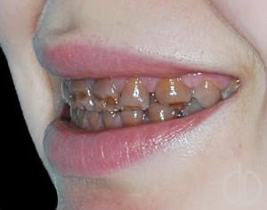 Гипоплазия зубов