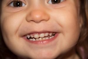 Как  сохранить ребенку здоровые зубы