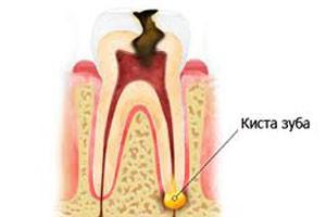 Киста зубного корня