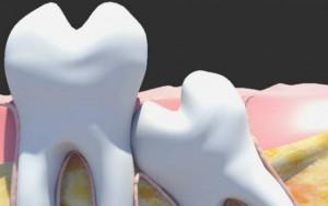 Особенности зуба мудрости