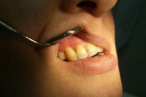 Профилактика кисты зуба