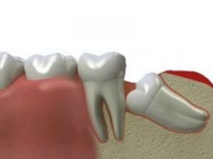 Симптомы ретенции зуба