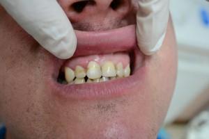 Вкладка и коронка установлена в полости рта