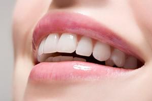 Что такое фотоотбеливание зубов