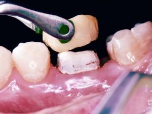 Как происходит установка зубной коронки
