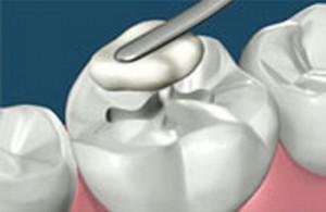 пломбирование зубов Сумы