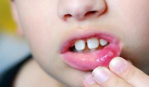 афтозный стоматит у детей
