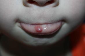 киста на губе