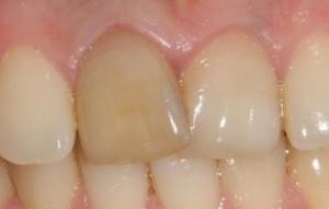 От чего меняется цвет зубов