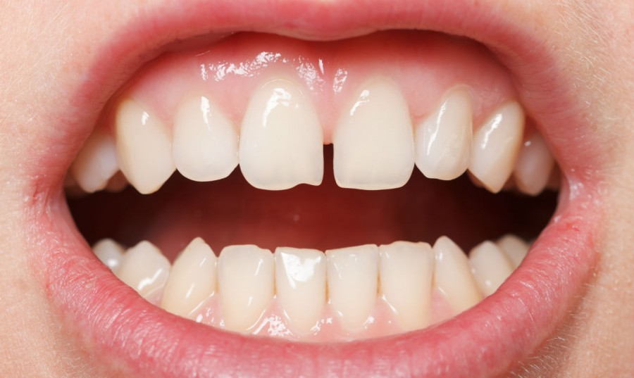 Как из щели между зубами сделать 693