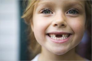 Лечение детского кариеса (Сумы)