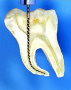 Лечение каналов зуба в Сумах