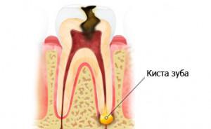 Лечение кисты зуба в Сумах