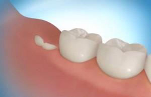 Лечение зубов мудрости