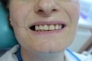 Временный зуб установлен