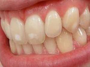 Лечение кариеса на стадии белого пятна