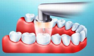 Лечение зубов с помощью озона