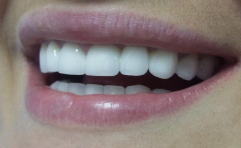 виниры на зубы цена mikdent