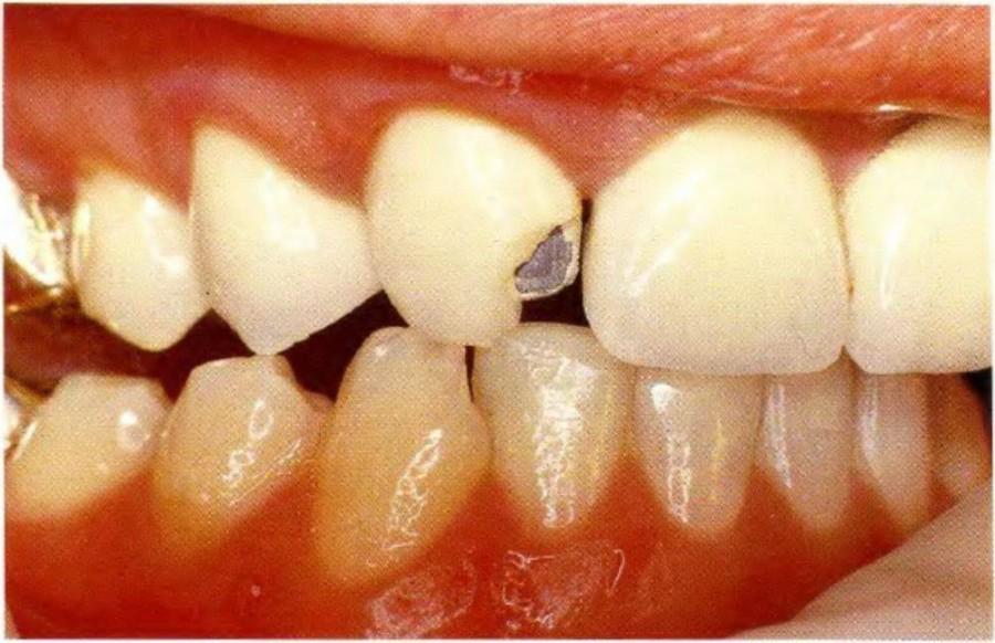 Отломился зуб на мосте зубов