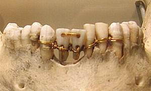 Зубные протезы были известны более 4000 лет назад