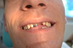 До протезирования передних зубов