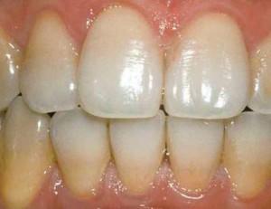 снять зубной налет