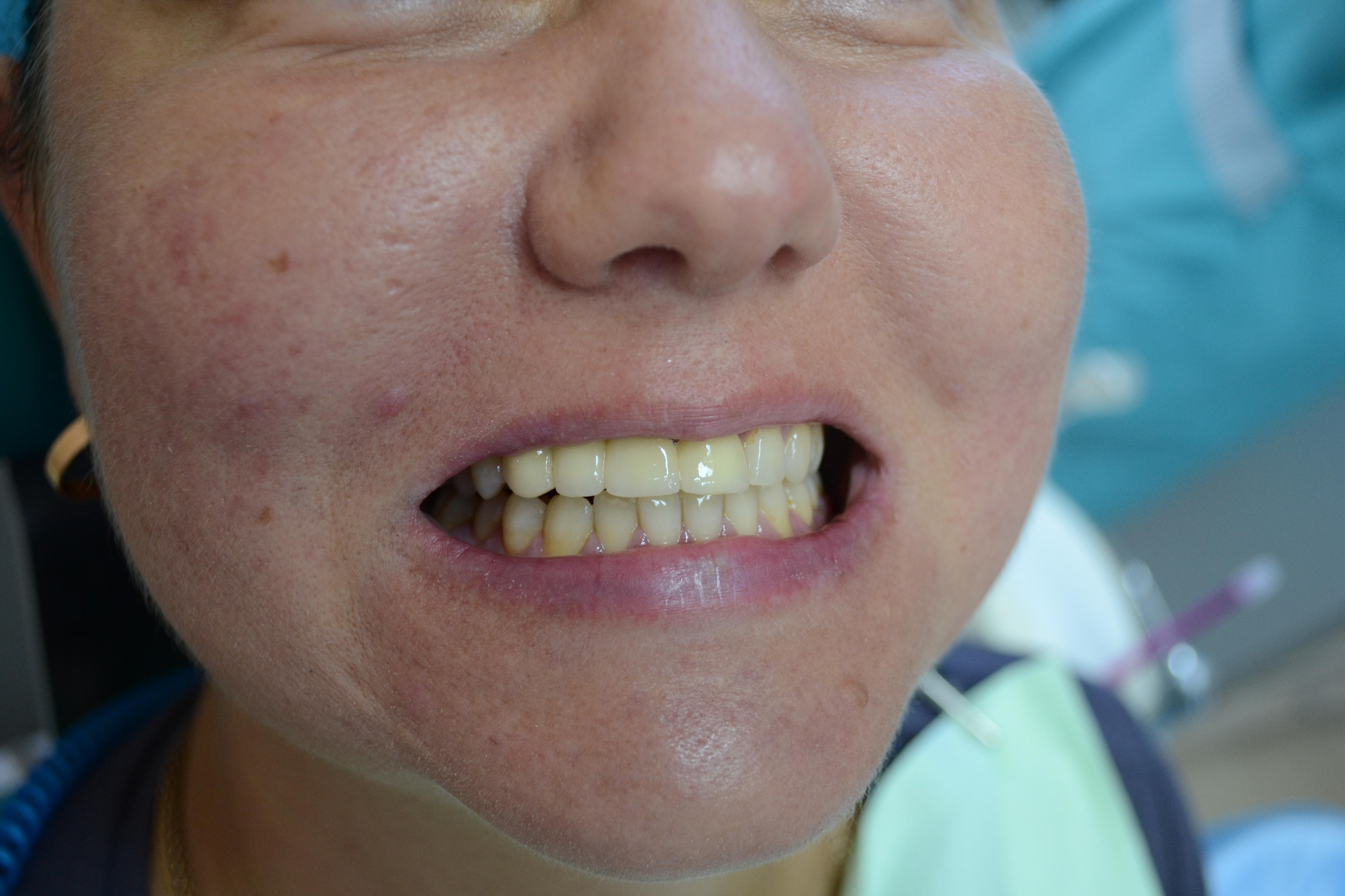 видео виниры на передние зубы