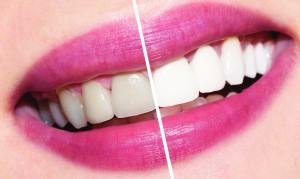 Кабинетное отбеливание зубов Сумы