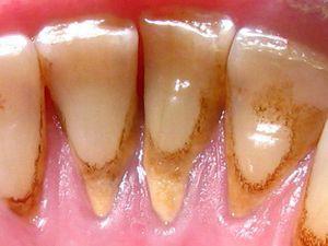 убрать зубной камень Сумы
