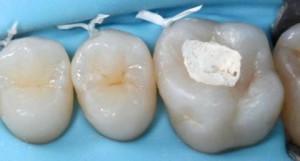 Зубные пломбы в стоматологии